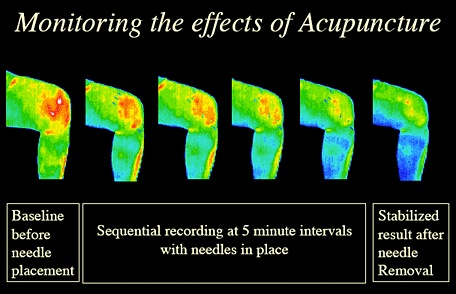 knee-acupunctuer-thermography